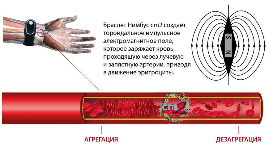 Магнитотерапия и браслет Нимбус Перформанс cm2