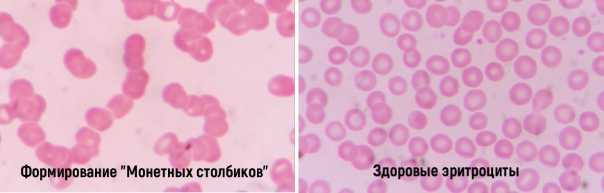Воздействие магнитотерапии за эритроциты - Монетные столбики - сладжирование