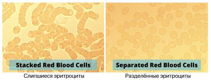 Сладжированность эритроцитов, кислород и технология CM2 против коронавируса